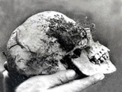 A skull found in the wych elm